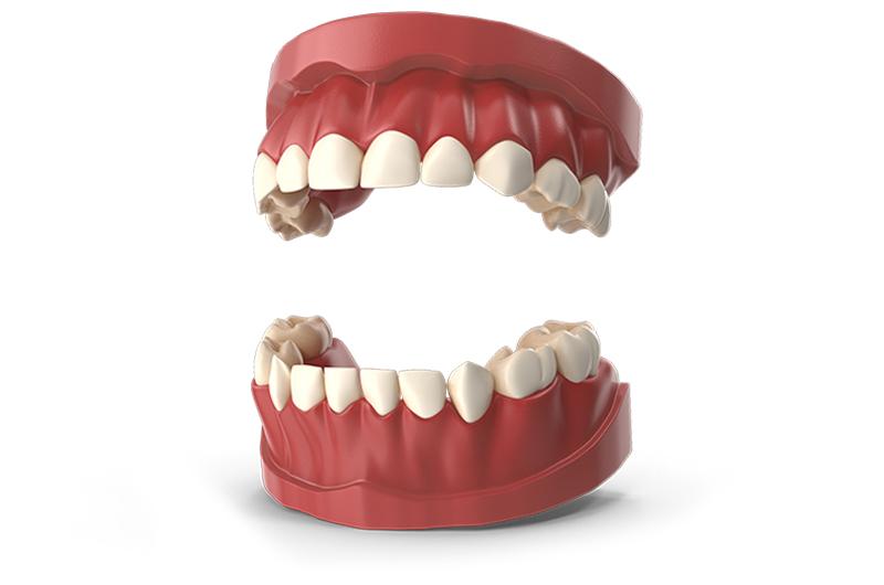 TeethPrimary.I02.2k