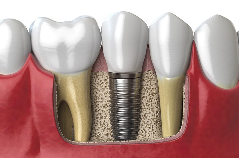 anatomy-of-healthy-teeth-and-tooth-dental-implant-PAF6ZMW